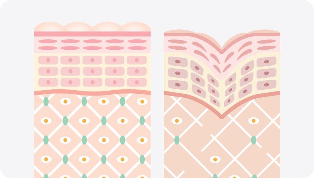 皮肤弹性的秘密——胶原蛋白